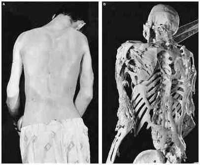 3 of the Worlds Most Bizarre Medical Conditions