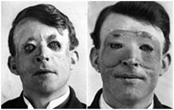 the-evolution-of-plastic-surgery